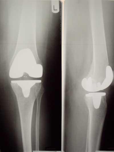 Postoperatives Röntgenbild: Kniegelenk nach Implantation eines Kunstgelenkes.